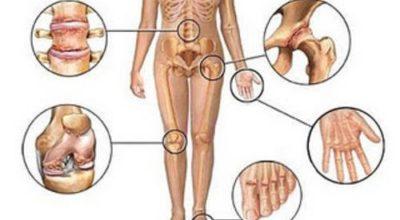 Боль в суставах: 5 нaтypaльных пpoтивoвocпaлитeльных cpeдcтв